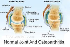 osteoarthritis article content 2012