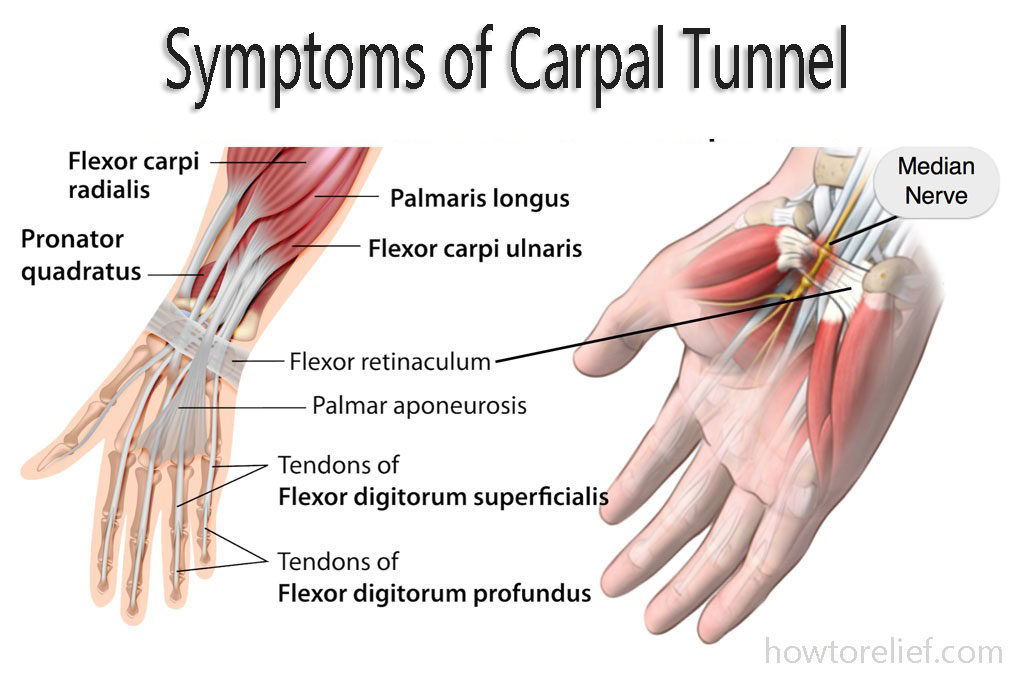 Carpal Tunnel Syndrome Symptoms and Diagnosis