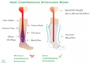Compression-stockings