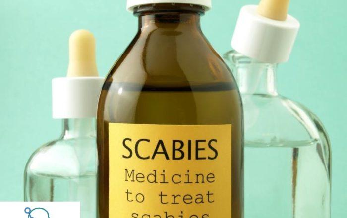 Scabies-Treatment