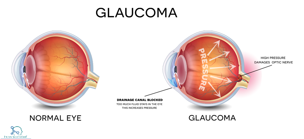 Glaucoma: Symptoms, Types, Causes & Treatment » How To Relief