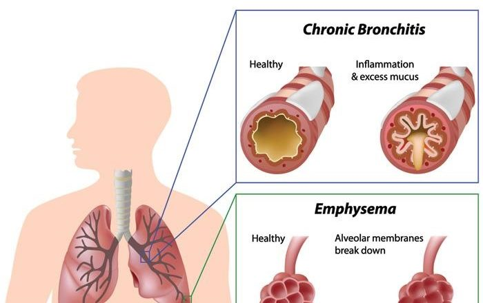 copd-overview