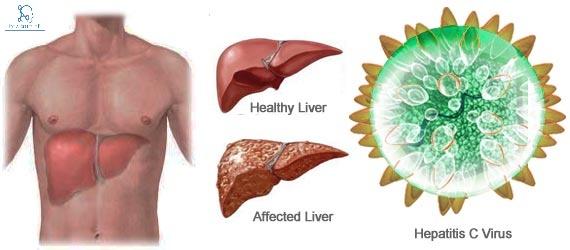 hepatitis-c virus