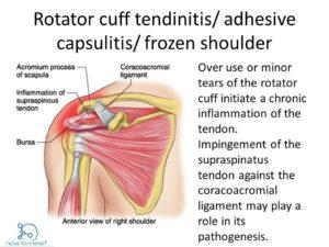 rotator cuff vs frozen shoulder