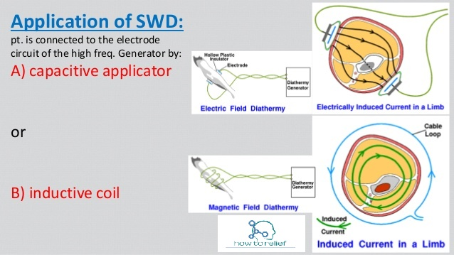 short-wave-diathermy(SWD)