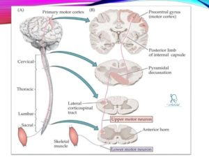 Lower motor neuron lesions sign symptom how to relief What is lower motor neuron disease