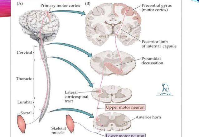 upper & lower-motor-neuron-lesions
