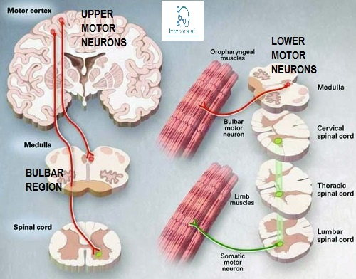 Upper motor vs lower motor neuron disease how to relief What is lower motor neuron disease