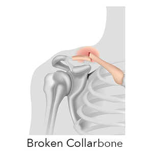 How to Realign a Fractured Bone