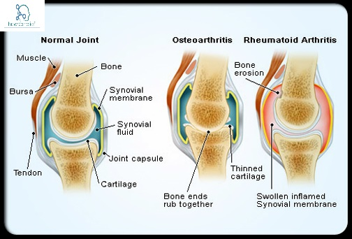 rheumatoid arthritis questin answers Questions and answers about juvenile rheumatoid arthritis  what is arthritis arthritis means joint inflammation, and refers to a group of.