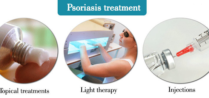 Treatment of Psoriasis