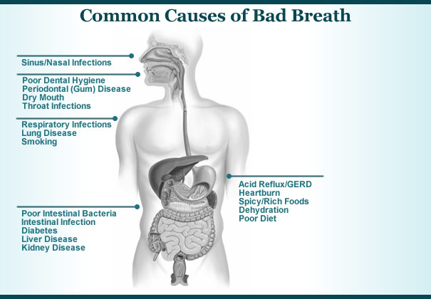 causes-of-bad-breath