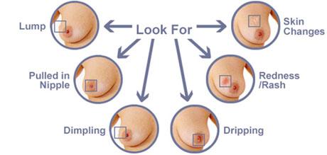 Breast-Cancer-symptomp