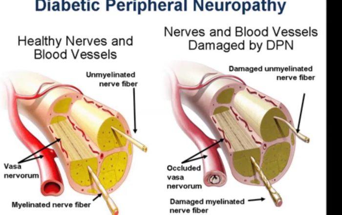 Diabetes Neuropathy