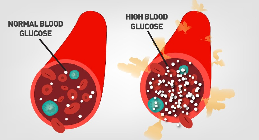 Hyperglycemia-high blood sugar