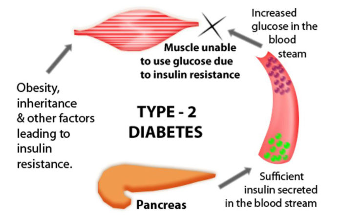 Type-2-Diabetes causes