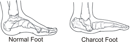 charcot-foot-Charcot-Arthropathy