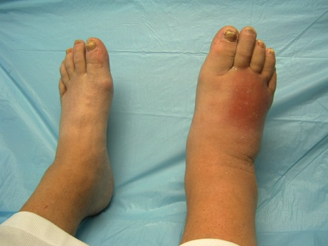 charcot-foot-early stage
