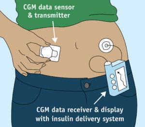 continuous glucose monitoring(CGM)