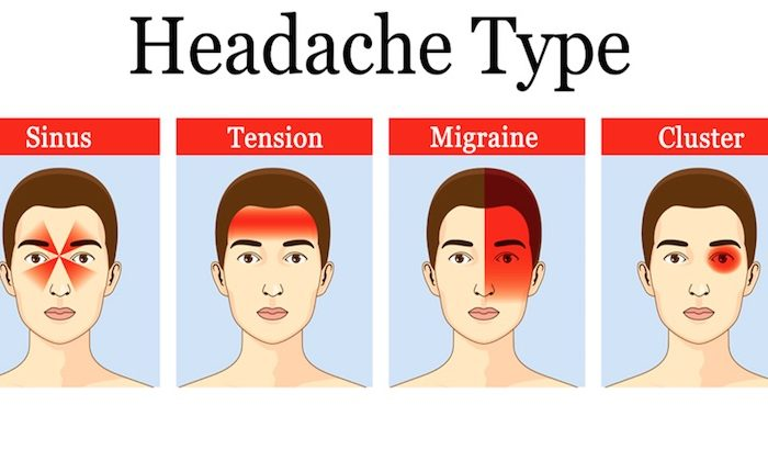 headache types