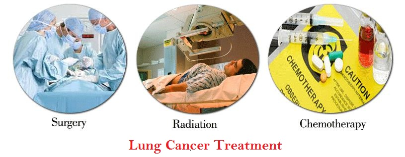 types causes and treatments for lung cancer Start here for information on common types of cancer, including breast, lung, colon, skin, prostate, and ovarian cancer get the facts on cancer symptoms, treatments.