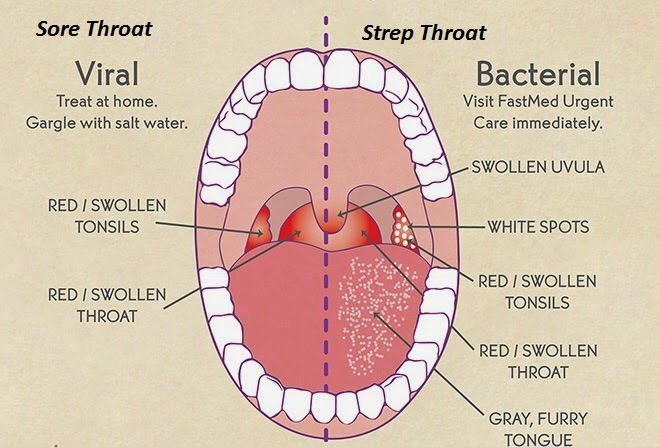 Pictures of soar throat symptoms — img 3