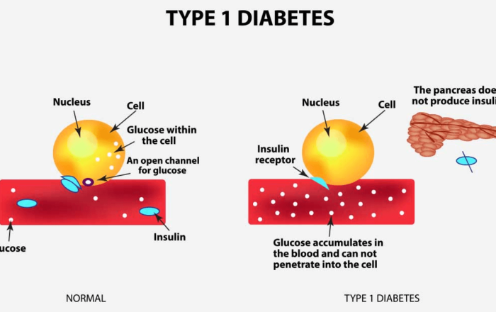 type-1-diabetes causes
