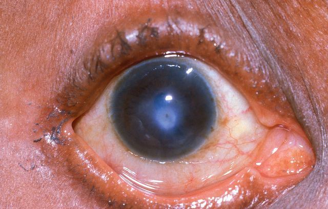 Corneal-Ulcer-symptoms
