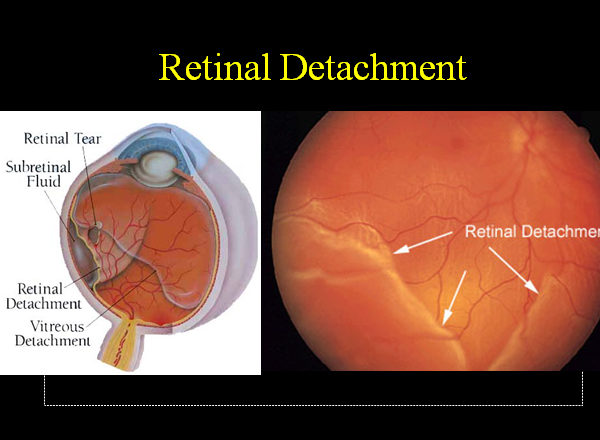 retinal-detachment-picture