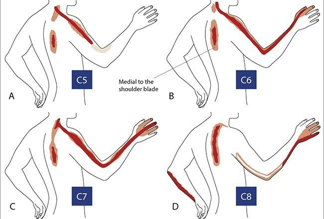 Symptoms of Cervical Disc Herniation