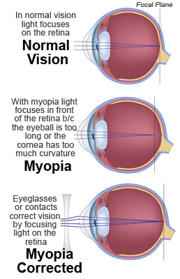 Myopia Nearsightedness Symptoms Causes Amp Treatment 187 How