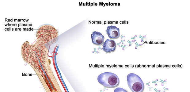 multiple myeloma treatment and prognosis