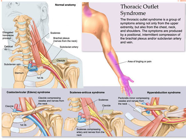 syndrome of thoracic outlet