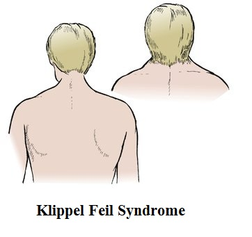 klippel fiel syndrome A rare cause of neck pain, klippel-feil syndrome is a cervical spine condition usually present to some degree at birth and which results in the congenital fusion of two of the seven cervical vertebrae.