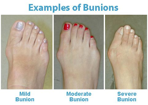 Wearing Shoes After Bunion Surgery